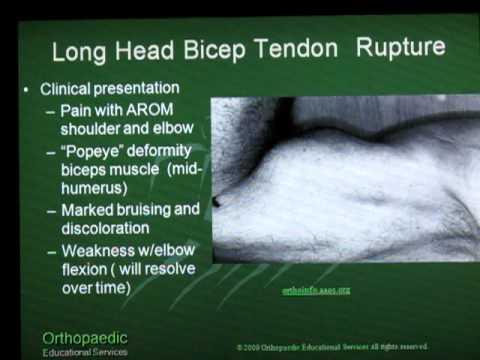Long Head Biceps Tendon Rupture