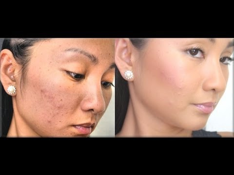 Full Coverage Foundation Routine for ACNE (Flawless Full Coverage Tutorial for Cystic Acne)