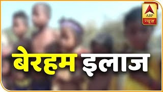 More than 50 children branded with hot iron rod in Keonjhar, Odisha - ABPNEWSTV