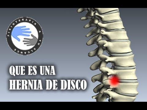 Hernia de disco, que es y como se produce / Fisioterapia a tu alcance