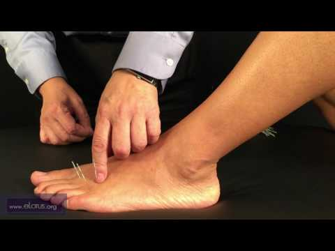 Muliu (T 66.06), Mudou (T 66.07) [FRANÇAIS]: Points d'acupuncture Tung par le Dr Chuan-Min Wang