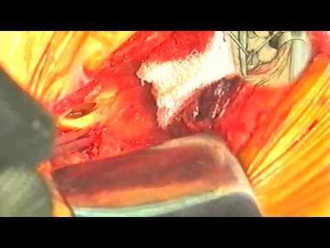Videogiornale di Ortopedia: Ernia del disco (1991)