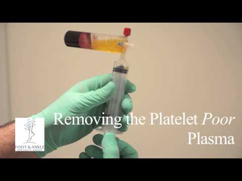 PRP Platelet Rich Plasma Therapy for Chronic Tendinosis, Ankle Pain