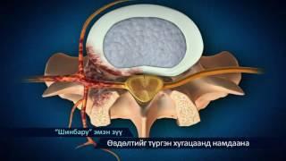 Мэдрэл, булчинг сэргээх эмчилгээ