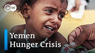 Yemen hunger crisis escalates | DW English - DEUTSCHEWELLEENGLISH