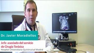 Prótesis impresas en 3D en cirugía torácica