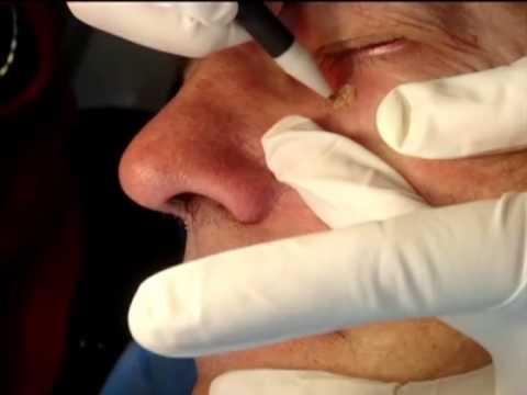 Seborrhoeic Keratosis under Eye