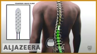 🇺🇸 New implant gives hope to the paralyzed | Al Jazeera English - ALJAZEERAENGLISH