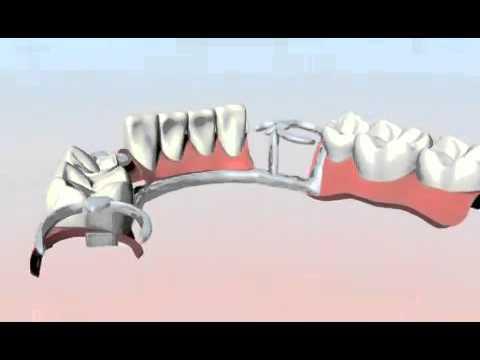 Prótesis Removible con Ganchos, BMD Bufete Médico Dental tu dentista monterrey