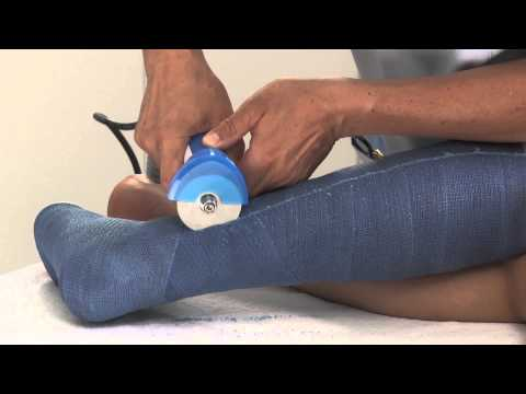 Plaster of Paris Lower Leg Cast Removal