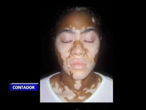 Dramáticos resultados en las técnicas de blanqueamiento de piel en las mujeres de Senegal
