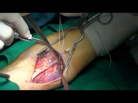 DISTAL BICEPS TENDON RUPTURE,  Dr. George GOUDELIS, Video 2