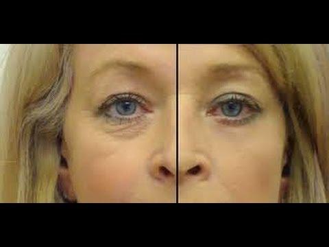 Haz tu Serum Ojos Sin Arrugas, Ojeras ni Bolsas / DIY Eye Firming Serum