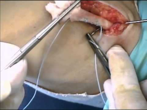 Repair of Distal Biceps Tendon Rupture - Bruce Leslie, MD