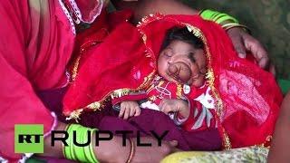 بالفيديو.. ولادة طفلة بـ«خرطوم فيل»