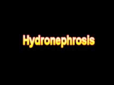 What Is The Definition Of Hydronephrosis - Medical Dictionary Free Online Terms