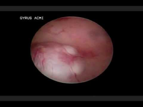 MIOMA SUBMUCOSO por HISTEROSCOPIA DIAGNOSTICA
