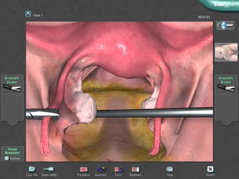 Laparoscopic tubal sterilisation -zJXIho3GMaU