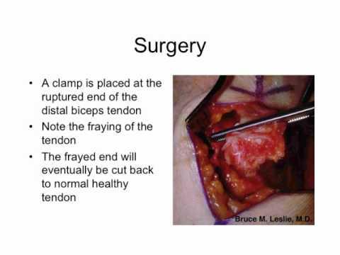 How to Repair a Distal Biceps Tendon Rupture