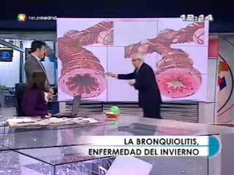 Bronquiolitis en bebes y niños prematuros (reportaje muy completo)