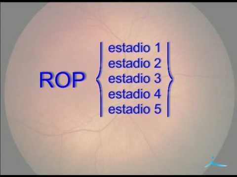 Retinopatía del prematuro - Dra. Nieves Martín Begué