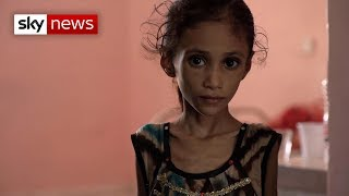 Special report: Yemen's children are starving - SKYNEWS