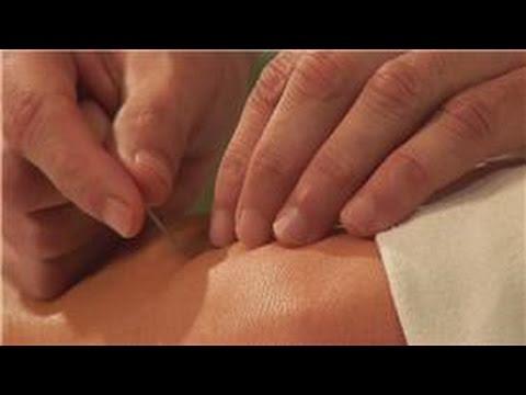 Acupuncture Treatments : Sciatica & Acupuncture