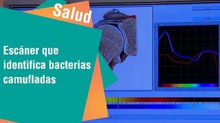 Escáner que identifica bacterias camufladas en los órganos   Salud