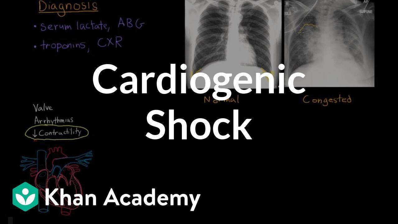 Cardiogenic shock | Circulatory System and Disease | NCLEX-RN | Khan Academy