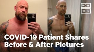 Battling COVID-19: Before and After Pictures | NowThis