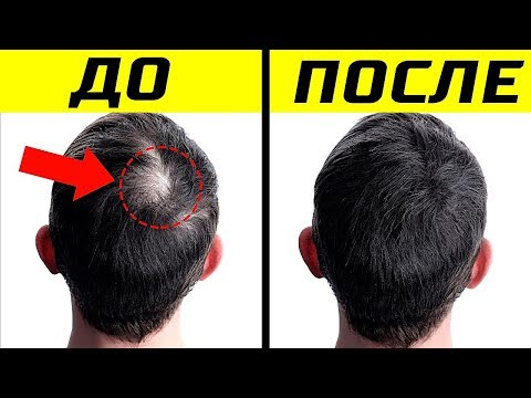10 Способов Как Улучшить Рост Волос