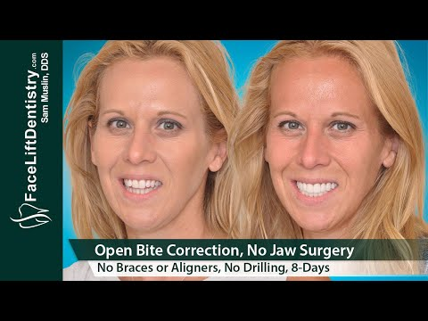 Open Bite Correction – Without Jaw Surgery and Braces