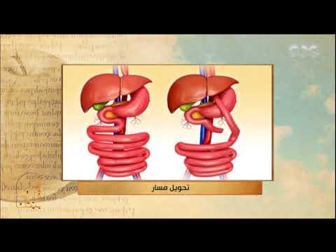 الحكيم في بيتك | شاهد .. كيف يتم إجراء عمليات جراحة السمنة بأنواعها