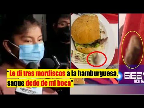 Mujer encuentra un dedo en su hamburguesa. Policía de Bolivia confirma que es de un humano