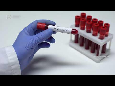 704 casos nuevos de VIH
