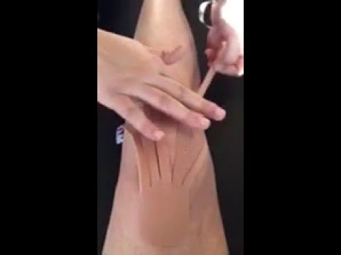 Kinesiotape for the knee