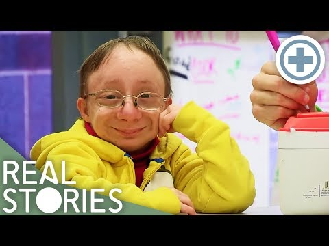 The Boy Who'll Never Grow Up (Extraordinary Person Documentary) - Real Stories