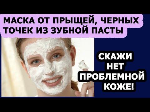 Уход за кожей лица Маска для лица от прыщей, черных точек из зубной пасты photo