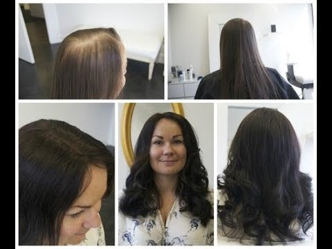 Hair system installation at Pacific Hair Vancouver