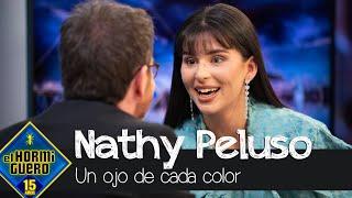 Nathy Peluso explica por qué tiene un ojo de cada color - El Hormiguero