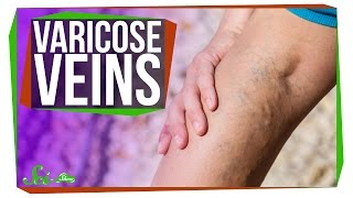 Why Do I Have Varicose Veins?