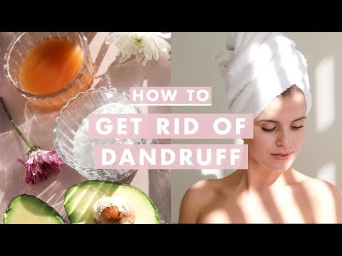 How to Get Rid of Dandruff | Home Remedies