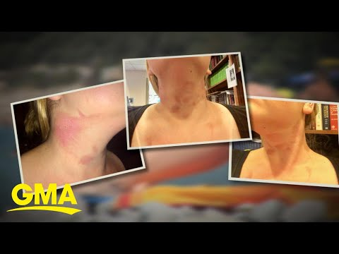 How limes and other citrus fruits can cause burns this summer l GMA