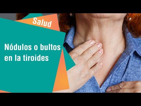 Nódulos en la tiroides: ¿Cuándo debo consultar al médico   Salud