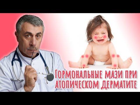 Гормональные мази при атопическом дерматите — Доктор Комаровский