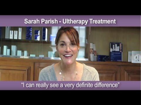 Sarah Parish after Ultherapy treatment