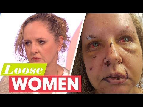 connectYoutube - My Husband Brutally Beat Me Until He Thought I Was Dead | Loose Women