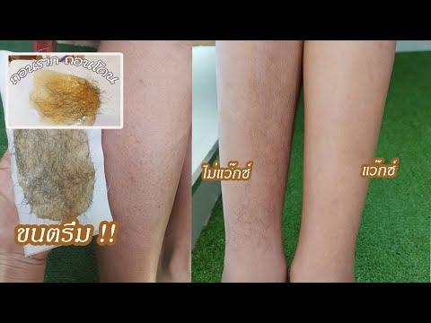 วิธีกำจัดขนขา-ให้เนียนเรียบแบบ
