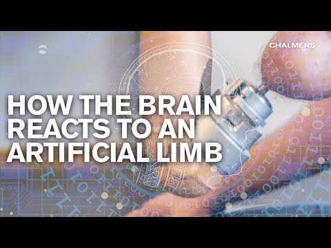 How the brain reacts to an artificial limb