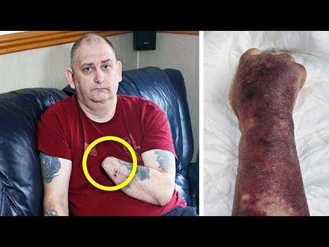 Мужчина съел суши, и 12 часов спустя врачам пришлось ампутировать его руку
